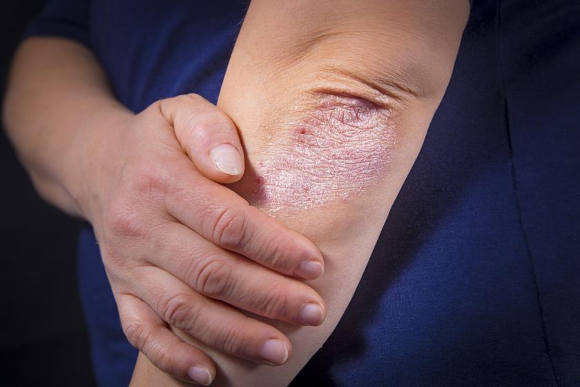 pikkelysömör betegség otthoni kezelse ha a könyökön vörös foltok vannak és viszket