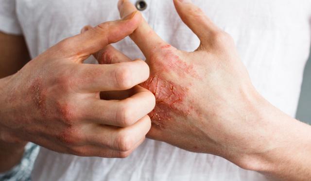kitörések a bőrön vörös foltok formájában hólyagokkal