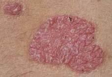 a fenekén vörös foltok viszketnek pikkelysömör az alsó lábszáron, mint kezelni