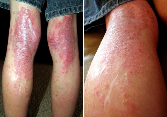 pikkelysömör és a láb dermatitisének kezelése