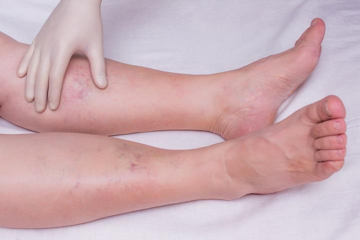 piros folt a pontokon a lábán