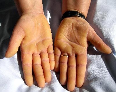 tenyér vörös foltokkal a bőr alatt