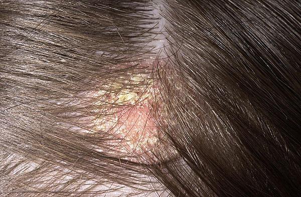 Vörös foltok a fejbőrön - Tudástár