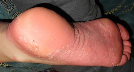 vörös folt a lábán forró tömítés síró vörös folt a bőrön
