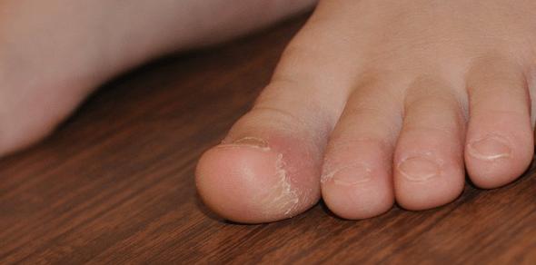 vörös folt a lábán forró tömítés pikkelysömör hogyan lehet enyhíteni az exacerbációt