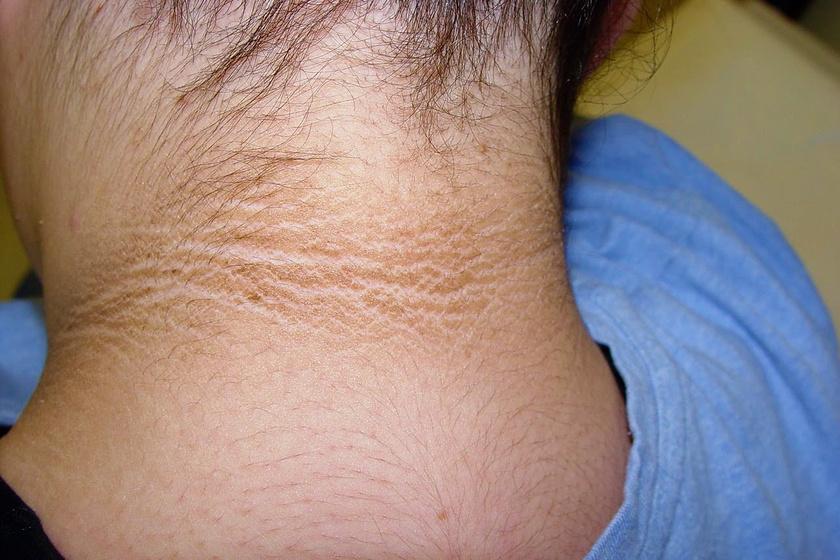 Milyen betegségre utalnak a vörös foltok? - Kárpáfinezza.hu