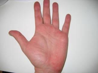 Piros foltok a kezeken az idegektől fotó