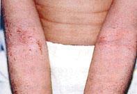 almaecet kezeli a pikkelysmr antibiotikum a pikkelysmr kezelsben