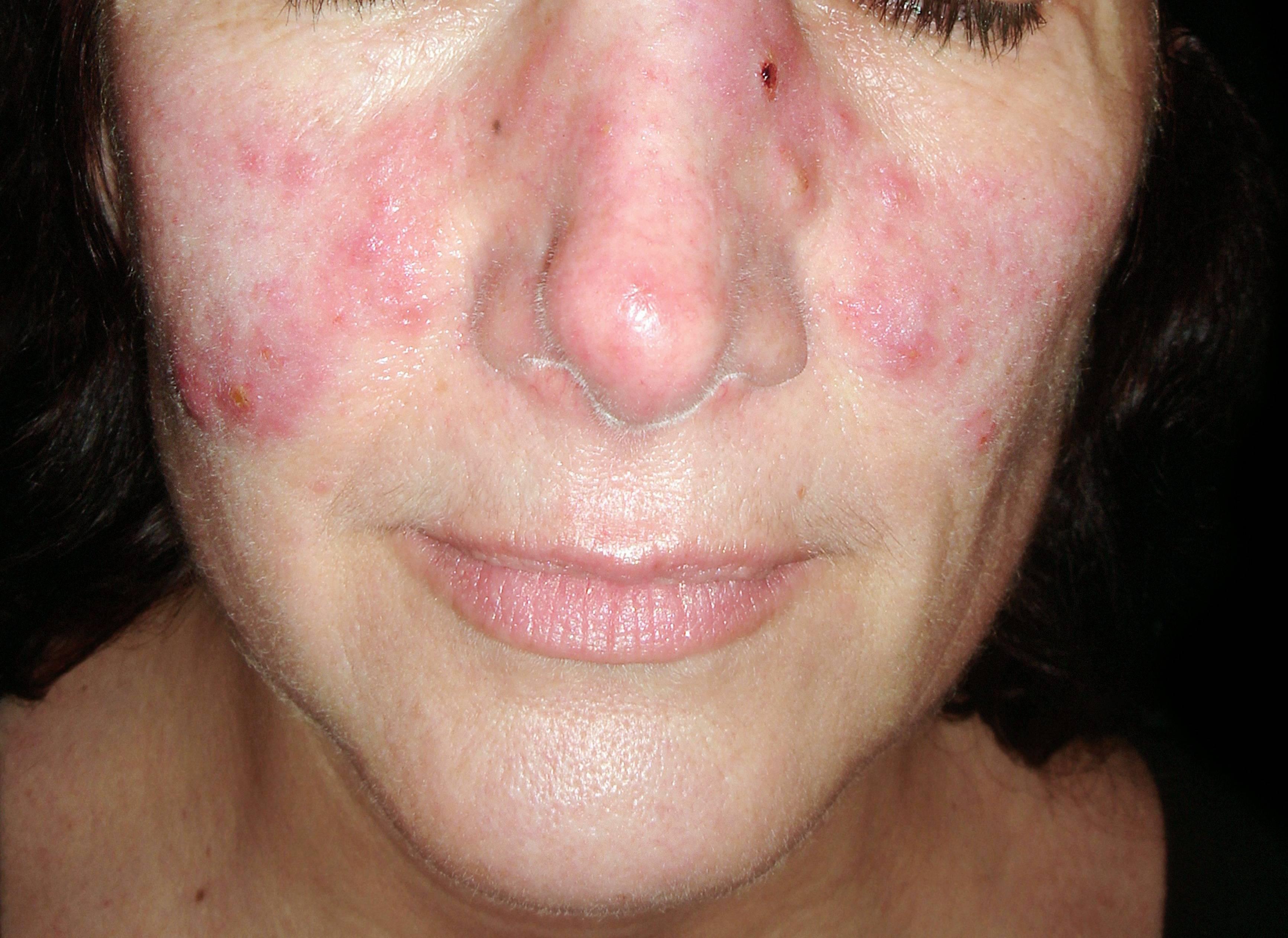 vörös foltok az arc bőrén fotó és a betegség neve