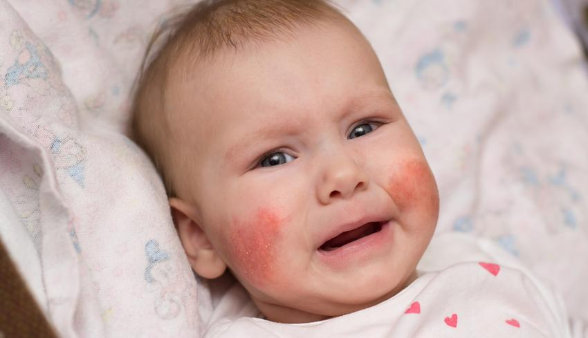 vörös foltok az arcon a nőknél Dead Sea Psoriasis Resorts