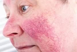 vörös foltok az arcon hővel vörös foltok az orr alatt hogyan lehet eltávolítani