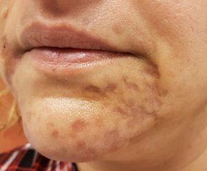 vörös foltok az arcon és égési sérülések Wanga pikkelysömör kezelése