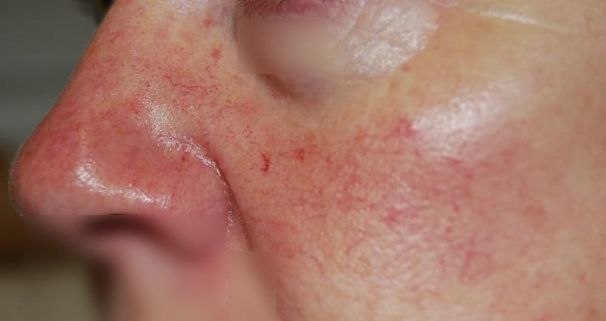 vörös foltok az orr körüli arcon