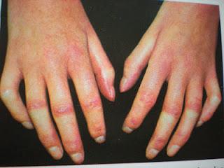 vörös foltok az ujjakon vörös foltok a kezeken viszketik mi ez