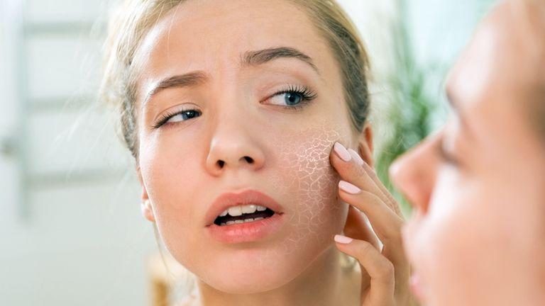 vörös foltokkal borított arc és viszketés kezelés