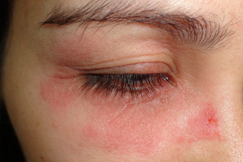 vörös durva folt a lábán a tenyéren lévő bőr alatt vörös foltok viszketnek