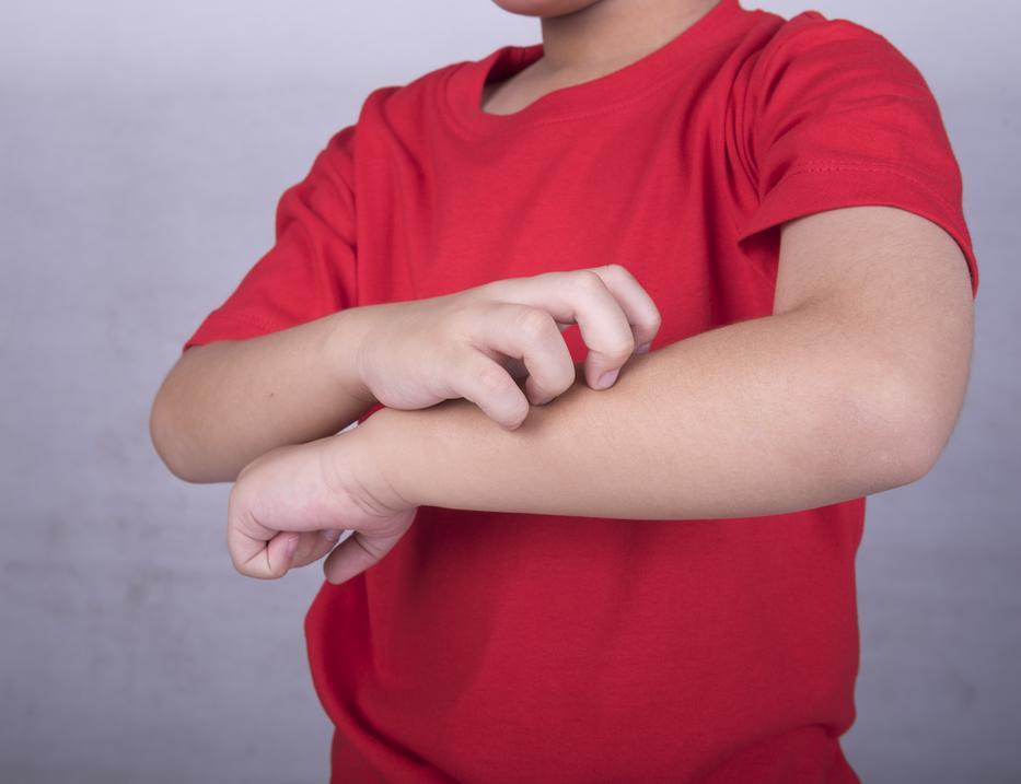 Mi okozhatja a könyök kipirosodását?