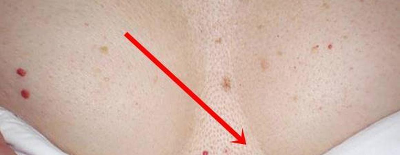 vörös pöttyök a lábán gyógyítható-e a pikkelysömörbetegség?