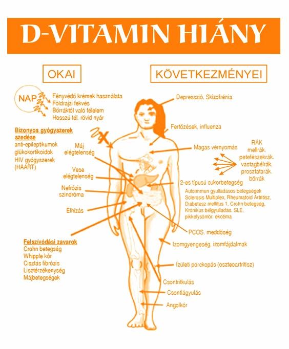 krémek D-vitaminnal pikkelysömörhöz kenőcs listája pikkelysömörhöz s