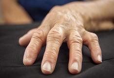 Kenologist pikkelysömör kezelése vörös napfoltok a lábakon