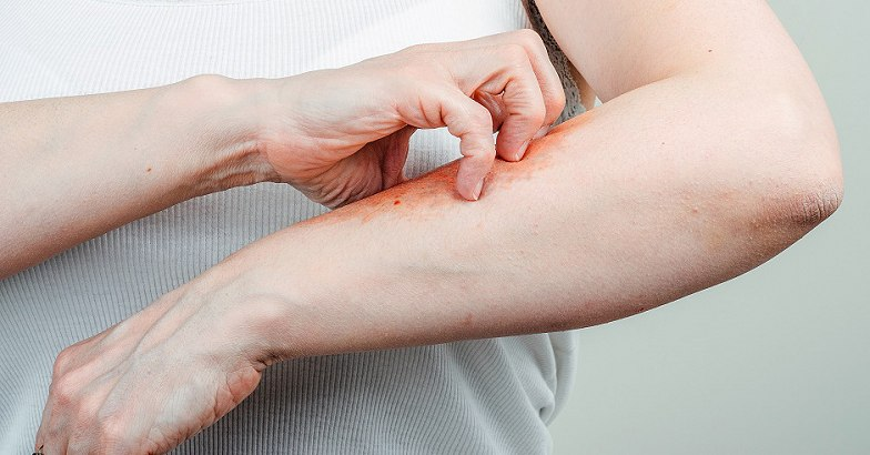 intenzív pikkelysömör kezelés bodza a pikkelysmr kezelsre