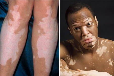 vörös folt a lábán, hogy lehámozzon és megsérüljön