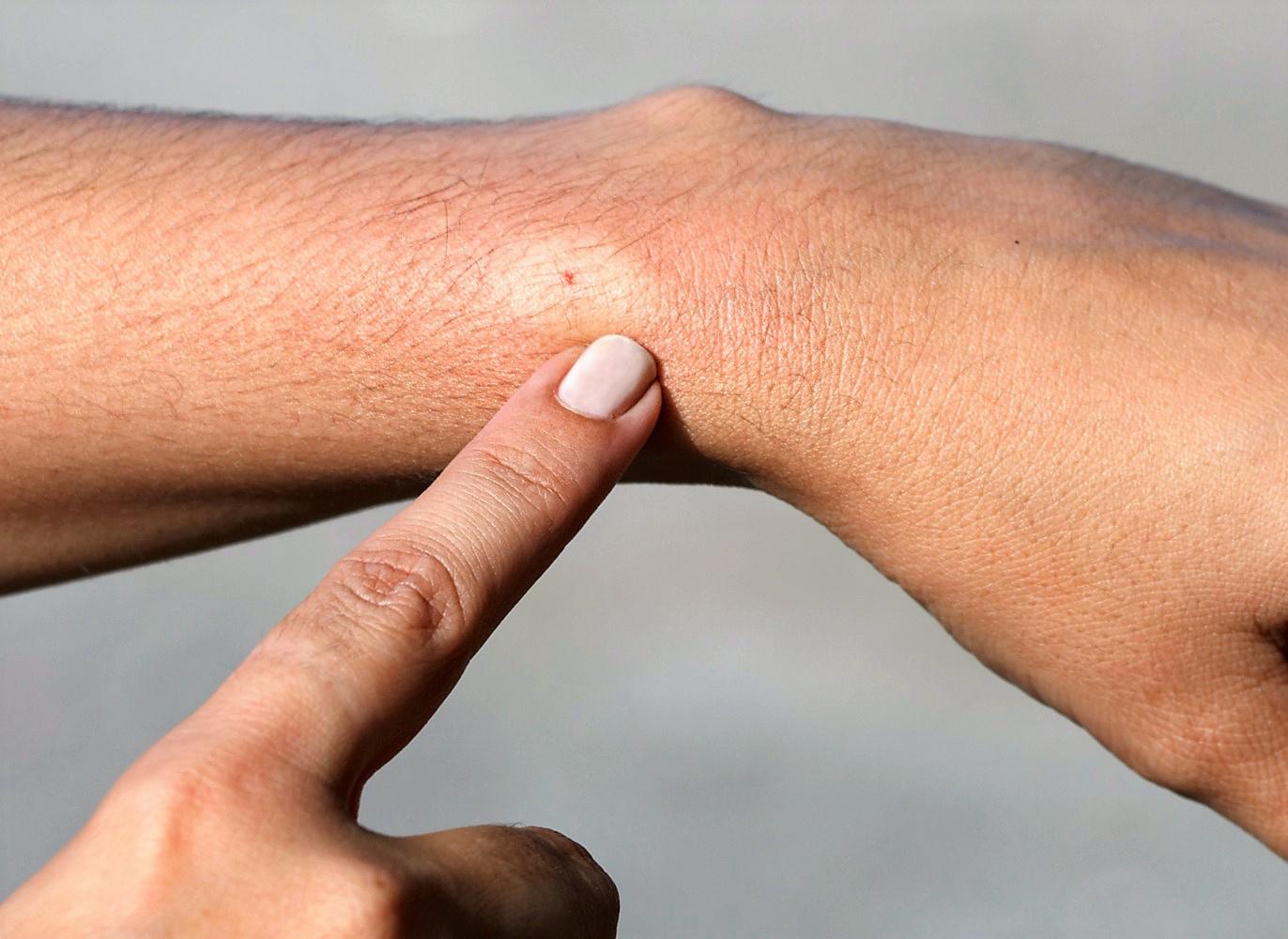 hogyan lehet eltávolítani a kezén lévő vörös foltokat