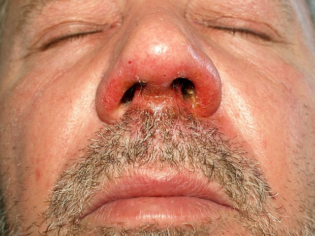 vörös foltok és hámlás az orr körül