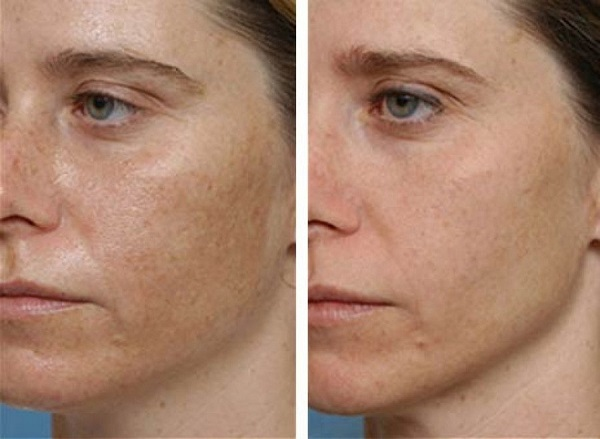 hogyan lehet otthon eltávolítani a vörös foltokat az arcról