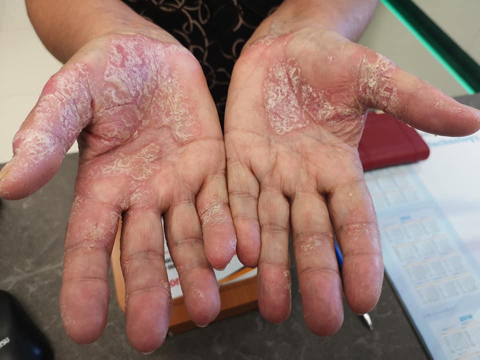 piros folt az ujjfotón