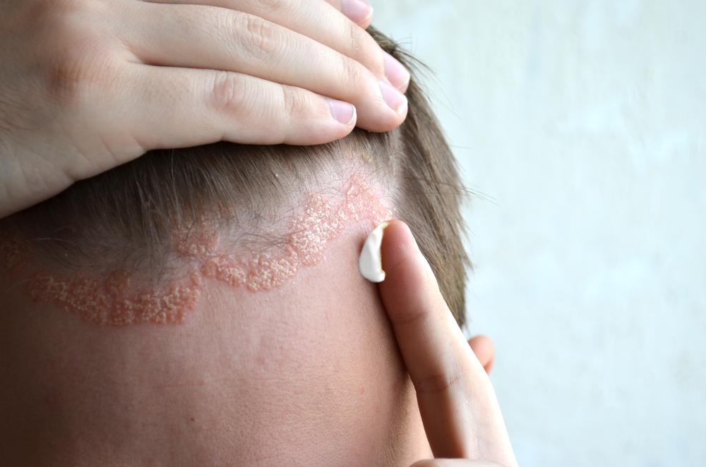 A rettegett bőrbetegség: pikkelysömör   Gyógyszer Nélkül