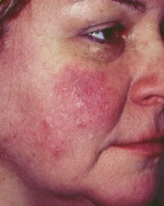 hogyan kell kezelni a vörös foltok testének kiütését vörös foltok az arcon, amikor iszom