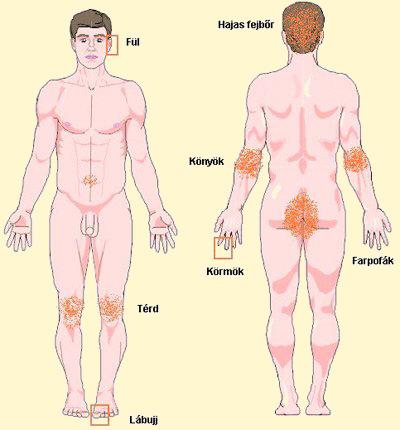 mik a foltok a vörös testén hogyan kell kezelni őket lehet- e megszabadulni a pikkelysömörtől az arcon