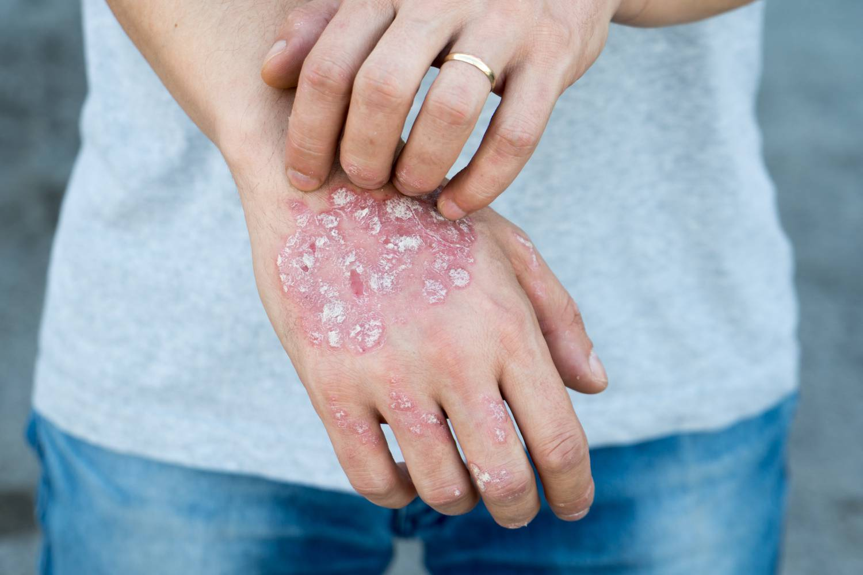 pikkelysömör kezelése fototerápiával terbinafin pikkelysömör kezelése