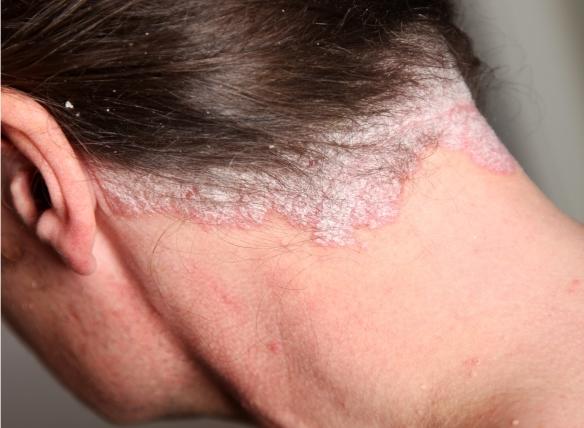 kénes kenőcs pikkelysömörre a fején hogyan lehet eltávolítani a hámló és vörös foltokat az arcról