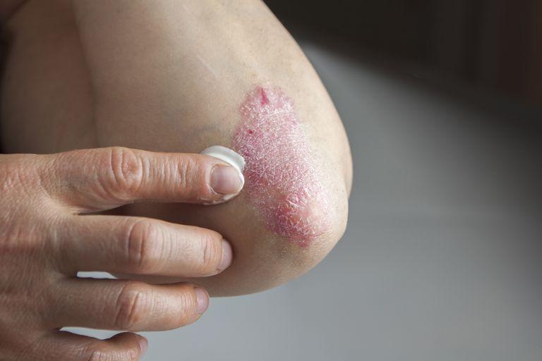 pikkelysömör a kezeken a kezelés kezdeti szakasza piros lapos foltok a hasán