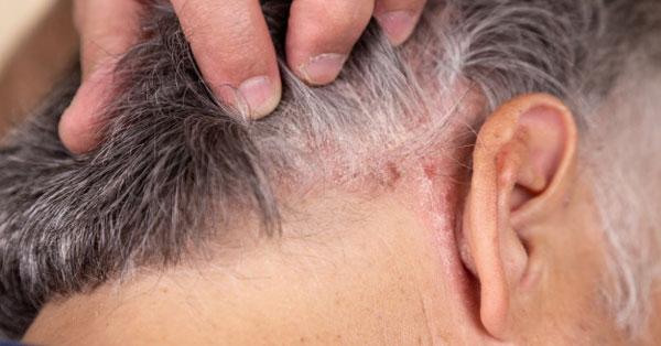 vörös folt a karon és viszketés hogyan lehet meggyógyítani a pikkelysömör fején otthon
