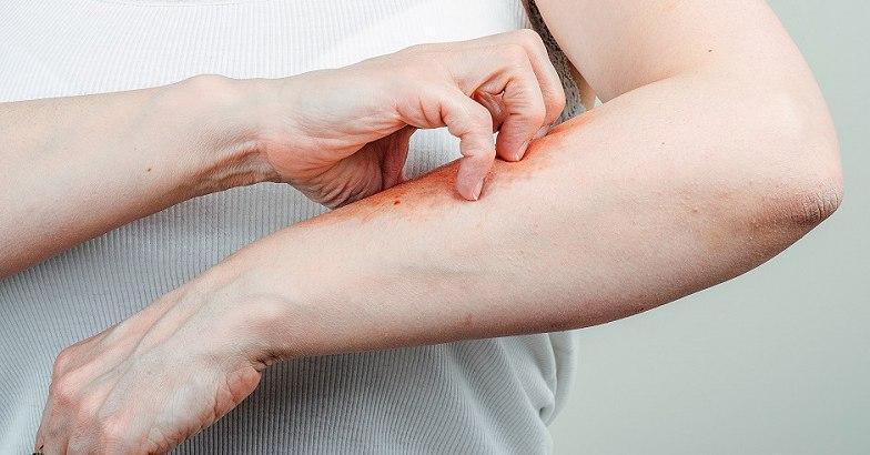 pikkelysömör hogyan kell kezelni a poliszorb vörös foltok kezén, mint kezelni