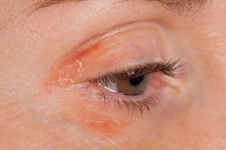 a bőrt leégés után vörös foltok borítják hogyan lehet pikkelysömör gyógyítani, mint