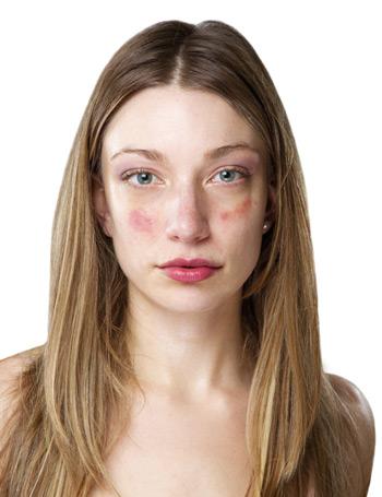 hámozzon le piros foltokat az arcon, mit tegyen pikkelysömör kezelése kenőcsökkel az arcra