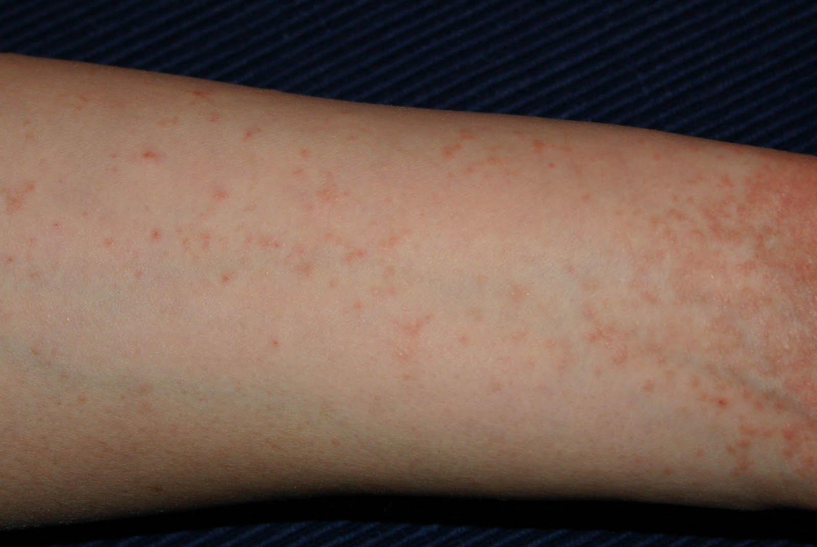 a mellkason lévő foltok vörösek és viszketőek hogyan kell kezelni a pikkelysmr creolinummal