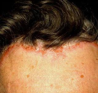 ekcémás fejbőr hajhullás