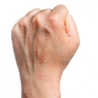 ustekinumab pikkelysömör kezelése alvás után vörös foltok a testen és viszket