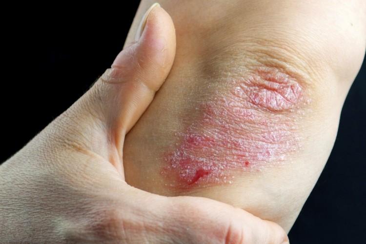 pikkelysömör és gombás kezelése