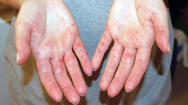 vörös folt a kezén durva folt hogyan kell kezelni a pikkelysmr emberben
