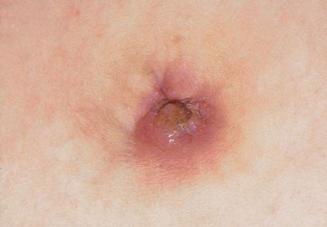 guttate psoriasis burning sensation sápadt folt a bőrön vörös peremmel