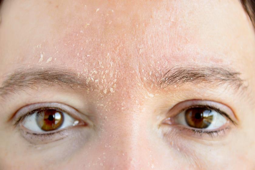 száraz foltok az arcon pelyhes vörös diólevél pikkelysömör kezelése