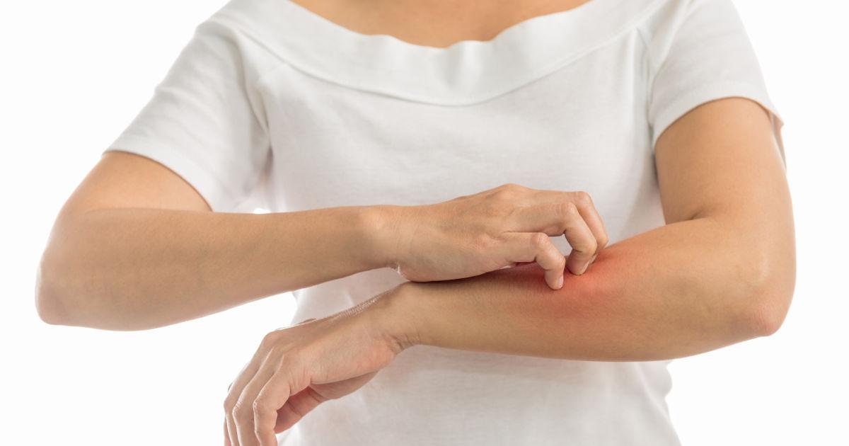 vörös foltok jelennek meg a karokon és a gyomorban