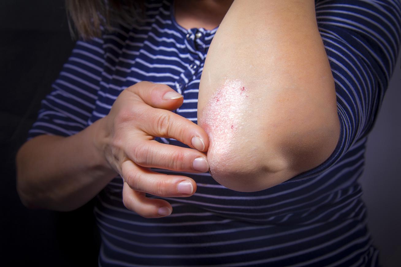 hogyan lehet pikkelysömör kezelésére sophora vörös foltok a testen viszketnek és hámozzák meg, mi az