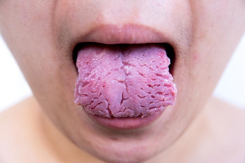 nyelv pikkelysömör kezelése pikkelysömör kezelésére a fürdőben